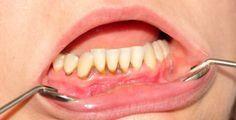 Comprehensive Dental Exam at Browns Plains - Brite Dental Group Dental Group, Teaching English Online, Receding Gums, Health Advice, Oral Health, Health Problems, Decay, Teeth, Exercises