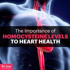 Homocysteine levels - Dr. Axe http://www.DrAxe.com #health #holistic #natural