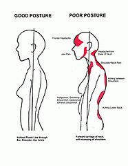Can Poor Posture Cause Lower Back Pain? Scoliosis Exercises, Posture Exercises, Alexander Technique, Back Posture Corrector, Bad Posture, Posture Correction, Massage Therapy, Physical Therapy, Back Pain