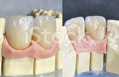 Dental protesi, denti incisivi superiori - fotografia stock royalty-free