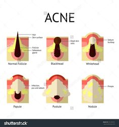 Stages and severity of acne diagram anti acne by palacia types of acne pimples healthy skin whiteheads and blackheads papules and pustules in flat style ccuart Gallery