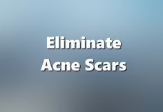 so what ways is there to eliminate acne?
