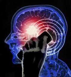 Head injury closed adult