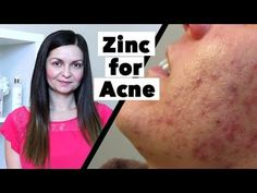 20 Best Acne Products For Clear Skin Noncomedogenic Skincare