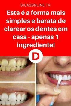 35 Melhores Imagens De Papo De Dente No Pinterest Healthy Teeth