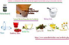Natural Herbal Remedies for Urethritis