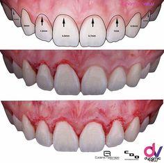 9 Best Digital Smile Design Dental Images Smile Design Dental Dsd