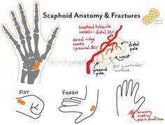 fracture   Sketchy Medicine