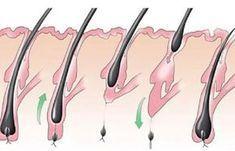 Ezért nő szőrzet a nők arcán és hogyan szabaduljunk meg tőle! Full Body Cleanse Detox, Doterra, Hair Beauty, Skin Care, Healthy, Decor, Animals, Style, Medicine