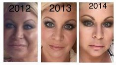 Nerium: wow these results are just amazing. Want to know more, then message me. http://nerium.com/shop/kebbert