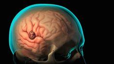 Craniotomy and Craniectomy