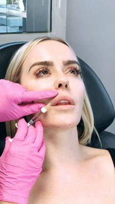 Our favorite @naventwins are back for some lip filler! If you're hesitant about #injections check out my KD Lip Plumper- it's like filler in a bottle 😍💋   #beautybydrkay #plasticsurgery #injections #lipfillersbeforeandafter  #lipfillers