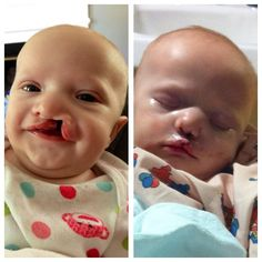Cleft lip - before & after surgery