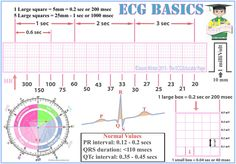 EKG, ECG, Heart rate, Cardiology