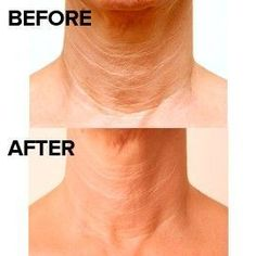 Got A Creased Turkey Neck? Try These Face Aerobics Exercises To Remedy It Quickly