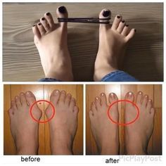 For all those who have bunions you can treat it by simple exercise at home! A bunion is an unnatural, bony hump that forms at the base of the big toe where it attaches to the foot. Health And Beauty Tips, Health And Wellness, Health Tips, Health Fitness, Natural Cures, Natural Healing, Health Remedies, Home Remedies, Easy At Home Workouts