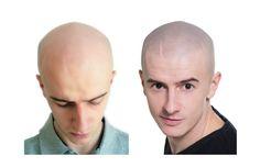 mikropigmentacja skóry głowy znakomite rozwiązanie w walce z łysieniem