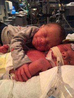 tierno abrazo de los gemelos Hawk y Mason a 11 días de nacidos.Hawk murió el 7 de septiembre (2016) por una hernia diafragmática congénita