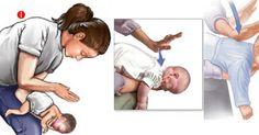 Esto es lo que debes de hacer si un niño se está ahogando con un alimento