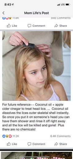Coconut Oil Uses - Use 1 pt coconut oil 1 pt Bragg Apple Cider Vinegar to kill head lice. 9 Reasons to Use Coconut Oil Daily Coconut Oil Will Set You Free — and Improve Your Health!Coconut Oil Fuels Your Metabolism! Simple Life Hacks, Useful Life Hacks, Home Remedies, Natural Remedies, Homeopathic Remedies, Natural Treatments, Health Remedies, Belleza Diy, Limpieza Natural