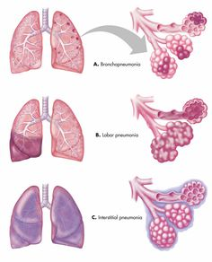 Biology Forums - For All Your Science Needs - (A) Bronchopneumonia with localized pattern. (B) Lobar pneumonia with a diffuse pattern within the l