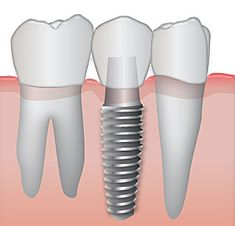 Interested in #Implants? We made a quick FAQ guide to help you out. Take a look!  #ThousandOaksDentist
