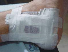 ¿Quieres saber mas sobre el pie diabético?