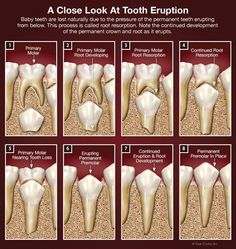 Dentaltown - A close look at tooth eruption. Baby teeth are lost naturally due to pressure of the permanent teeth erupting from below. This process is called root resorption. Note the continued development of the permanent crown and root as it erupts. Dental World, Dental Life, Dental Art, Dental Health, Oral Health, Dental Hygiene School, Dental Assistant, Dental Hygienist, Dental Implants