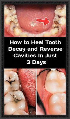 Sick Wisdom Teeth Age Dentalimplants Cosmeticdentistry Reverse Cavities Tooth Decay Tooth Decay In Children