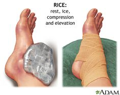 "Be sure to remember ""R.I.C.E."" the next time that your ankle isn't feeling so nice!"