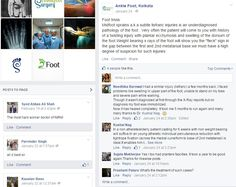 Anklefoot fb post