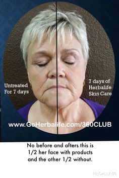 7day Results.  No before and afters.  She any did the Herbalife skin on Half if her face.   Contact me for more information.  The results are real.