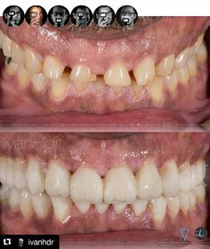 #Repost #follow @ivanhdr with @repostapp  Indonesia Dental Photography_ Severe Bruxism case_ Restoring Esthetic & Function_ Guidance_ restored_ Dv Up around 5 mm_ Functional Provisonals for evaluation and adaptation_ #Indonesia #Jakarta #NewYork #IndoDentalCenter #FirstClass #Dentistry #SmileSpecialist #goodSmile #goodOcclusion #Smile #because #you #can #southeast #asia #dental #report #seadr by southeastasiadentalreport Our General Dentistry Page…