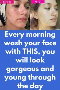 Every morning wash your face with THIS, you will look gorgeous and young through the day Our facial skin in very delicate when we wake up in the morning. It's the best time to clean up the skin so it will look glowing and gorgeous through out the day. Best Beauty Tips, Beauty Care, Beauty Skin, Health And Beauty, Diy Beauty, Beauty Hacks, Beauty Ideas, Beauty Secrets, Beauty Guide