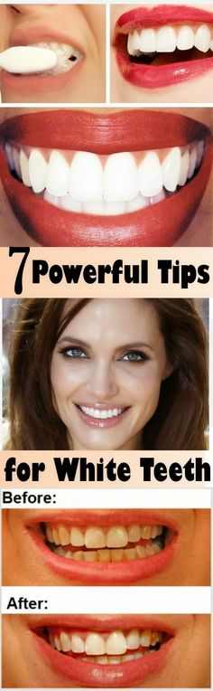 7 Powerful Tips For White Teeth | Nature Is The Answer