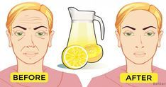 This homemade face lemon toner can make your wrinkles disappear · Fitness and Health Homemade Face Toner, Toner For Face, Homemade Face Masks, Lemon Juice Face, Lemon Juice Benefits, Lemon Toner, Home Remedies For Hair, Les Rides, Natural Beauty Tips