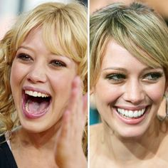 Before & After: Celebrity Teeth. Dr. Mladen Sevaljevic at MJ Dental in #Toronto, #Ontario is providing you the best dental services.http://www.mjdental.com/teeth-whitening/