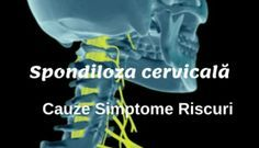Durerea de gât. Spondiloza cervicală Sciatica, Health, Poster, Medicine, Health Care, Billboard, Salud