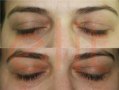 Xsanthalesma, ksantalesma, göz kapağı yağ birikimleri...  Q-SW laser ile bir seans tedaviden 20 gün sonra.  Sizin de benzer problemleriniz varsa Elit Polikliniği Whatsapp numarasından bize fotoğraf ulaştırmanız yeterli: 0554 557 75 70