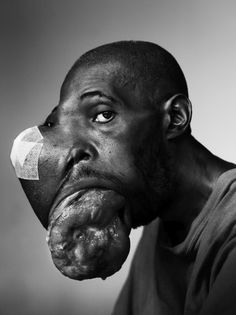 people of mercy - World Press Photo - 1ste prize stories - Stephan Vanfleteren Look at the face and you'll see horror, look at the eyes and you'll see deep deep sadness...