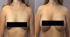 Don't Worry- These 6 Plants That Make Your Breast Grow - ROAD TO FUTURE