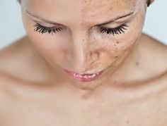 #Microdermabrasion is a non-invasive procedure that works best for removing age spots, #pigmentations, fine lines, acne scars