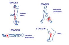 URGO MEDICAL : peripheral artery disease stages