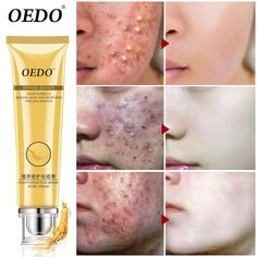 Acne which is triggered by the extreme production of sebumor all-natural skin oil that creates blocked pores resultingpuffy aswell as pus-filled sores Acne Mark Removal, Scar Removal Cream, Pimple Scars, Acne And Pimples, Deep Cleansing Facial, Skin Nutrition, Natural Oils For Skin, Acne Marks, Skin Care Cream