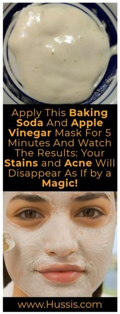Apply This Baking Soda And Apple Vinegar Mask For 5 Minutes And Watch The Results: Your Stains And Acne Will Disappear As If By A Magic - Pure Natural Skin Healthy Tips, Healthy Skin, Healthy Beauty, Beauty Hacks For Teens, Apple Vinegar, Cider Vinegar, Image Skincare, Makeup Tricks, Tips Belleza
