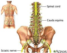 Cauda equina spinal cord nerve pain from pelvis Sciatica Exercises, Sciatica Symptoms, Sciatica Relief, Severe Lower Back Pain, Low Back Pain, Natural Home Remedies, Natural Healing, Salud Natural, Home Remedies