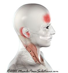 The SCM can cause a variety of symptoms and is the only muscle that creates such wide spread problems. Cervical instability can cause this muscle to overdevelop creating complex problems to unravel. Neck And Back Pain, Neck Pain, Sternocleidomastoid Muscle, Stiff Neck Remedies, Occipital Neuralgia, Tinnitus Symptoms, Scoliosis Exercises, Muscle Pain, Massage Therapy