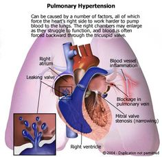 Pulmonary Hypertension is a diagnosis of exclusion.  This is diagnosed only after the doctor finds an elevated blood pressure in the lungs and excludes or cannot find other reasons for the hypertension, such as chronic obstructive pulmonary disease (chronic bronchitis and emphysema), blood clots in the lung (pulmonary thromboemboli), or forms of congenital heart disease.