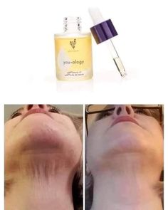 This is one of the top products that dermatologists recommend we use daily too. It removes dark spots, brightens the… Makeup Tips Younique, Younique Epic Mascara, Mascara Tips, Younique Images, Uplift Eye Serum, Image Skincare, Facial Oil, Facial Masks, Skin Care