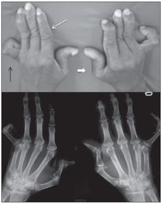 """Jaccoud's arthropathy of hands. A 55-year-old patient diagnosed with SLE for 17 years ago. A: Photo and plain radiography demonstrating findings of arthropathy such as metacarpal ulnar deviation, """"swan-neck"""" deformity (fine white arrow), Boutonniere deformity (black arrow), and """"Z"""" deformity of thumb (thick white arrow)."""